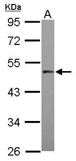 PRAK Antibody (PA5-28304) in Western Blot