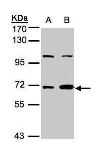 GBP1 Antibody (PA5-28307) in Western Blot