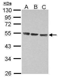 IL13RA1 Antibody (PA5-28309) in Western Blot