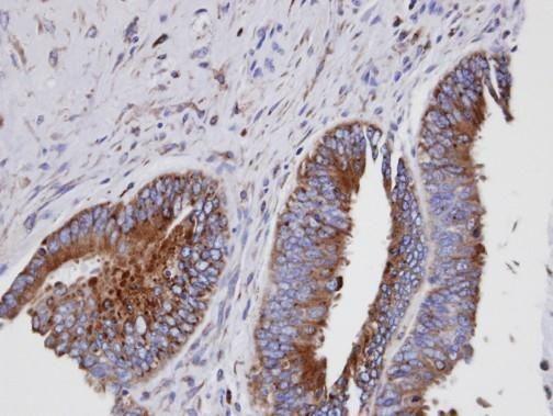 GIT1 Antibody (PA5-28316) in Immunohistochemistry (Paraffin)