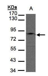 GIT1 Antibody (PA5-28316) in Western Blot