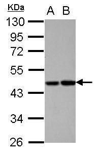 Protein C Antibody (PA5-28321) in Western Blot