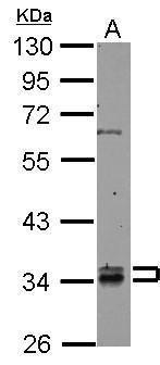 RABGGTB Antibody (PA5-28324) in Western Blot
