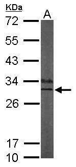 KCNIP3 Antibody (PA5-28330) in Western Blot