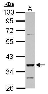 DMRT1 Antibody (PA5-28331)
