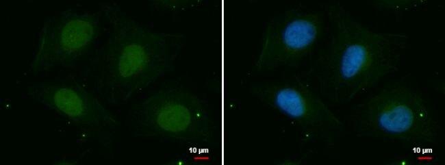PSKH2 Antibody (PA5-28332) in Immunofluorescence
