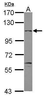 GABBR2 Antibody (PA5-28340) in Western Blot