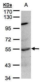 PTP1B Antibody (PA5-28358) in Western Blot