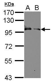 KELL Antibody (PA5-28365) in Western Blot