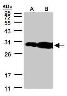 HOXC11 Antibody (PA5-28367)