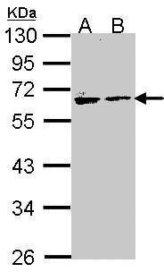 Arylsulfatase A Antibody (PA5-28372) in Western Blot