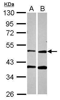 PPOX Antibody (PA5-28374) in Western Blot
