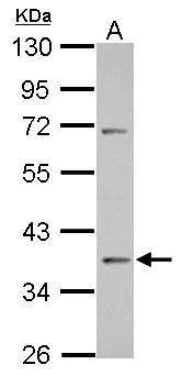 Fra2 Antibody (PA5-28377) in Western Blot