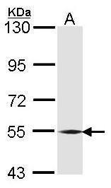 BMP-6 Antibody (PA5-28378)