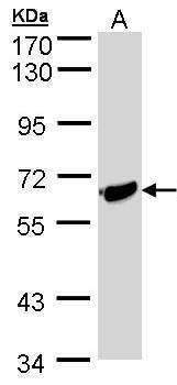 ST2 Antibody (PA5-28383) in Western Blot