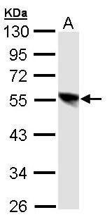 DP1 Antibody (PA5-28387) in Western Blot
