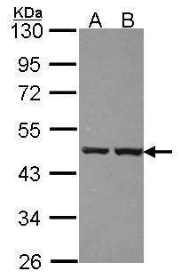 ZNF396 Antibody (PA5-28388) in Western Blot