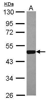 ESRRA Antibody (PA5-28390)