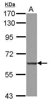 MEFV Antibody (PA5-28397) in Western Blot