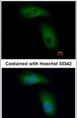 TRIM36 Antibody (PA5-28401)