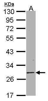 SIRT3 Antibody (PA5-28402) in Western Blot