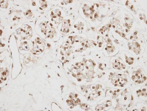 NCBP1 Antibody (PA5-28417) in Immunohistochemistry (Paraffin)