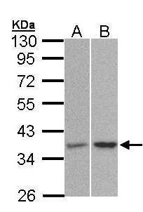 PP2A alpha Antibody (PA5-28419) in Western Blot