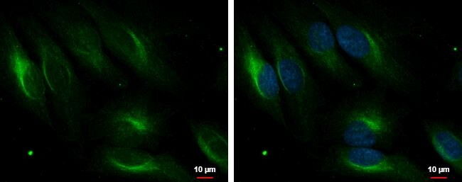 PDLIM4 Antibody (PA5-28425) in Immunofluorescence