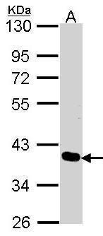 PDLIM4 Antibody (PA5-28425) in Western Blot
