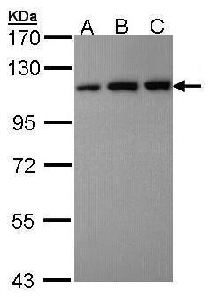 VDP Antibody (PA5-28427) in Western Blot
