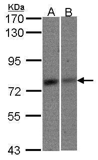 MTA2 Antibody (PA5-28432) in Western Blot
