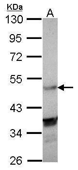 LXR alpha Antibody (PA5-28439) in Western Blot