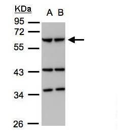 Coronin 1A Antibody (PA5-28450) in Western Blot