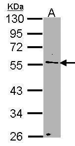 NUP50 Antibody (PA5-28452) in Western Blot
