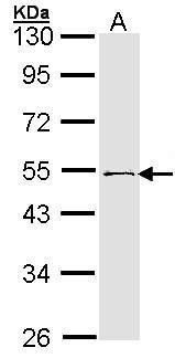 RNF13 Antibody (PA5-28455) in Western Blot