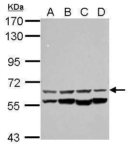 CESK1 Antibody (PA5-28468) in Western Blot