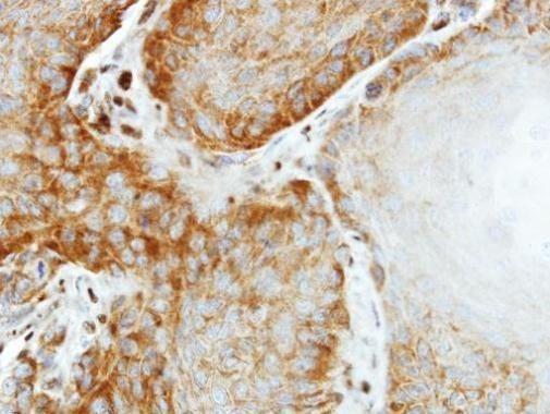eIF2 beta Antibody (PA5-28469) in Immunohistochemistry (Paraffin)