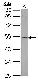 eIF2 beta Antibody (PA5-28469) in Western Blot