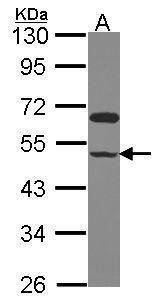 GRINL1A Antibody (PA5-28472) in Western Blot