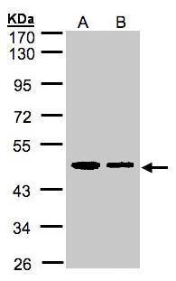 ERP44 Antibody (PA5-28484) in Western Blot