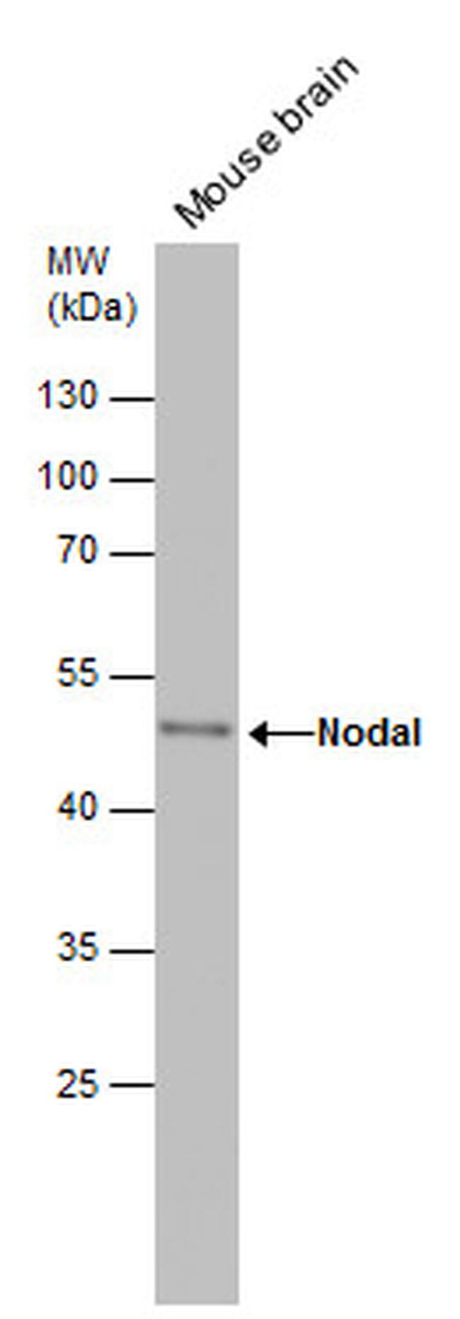 Nodal Antibody (PA5-28486) in Western Blot