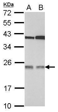 p27 Antibody (PA5-28487)
