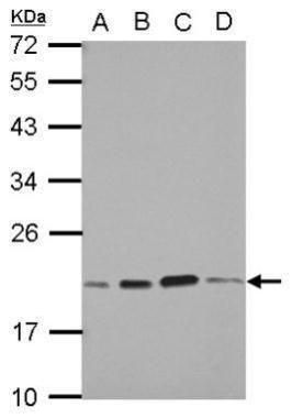 SKP1 Antibody (PA5-28489) in Western Blot