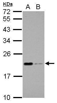 Apolipoprotein M Antibody (PA5-28496)
