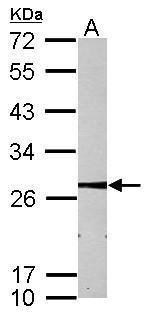 MMAB Antibody (PA5-28499) in Western Blot