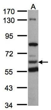 HACL1 Antibody (PA5-28511) in Western Blot
