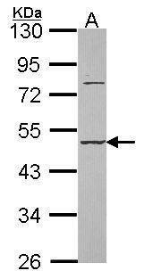 DAZ3 Antibody (PA5-28512) in Western Blot