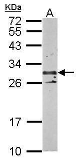 TSPAN3 Antibody (PA5-28514) in Western Blot