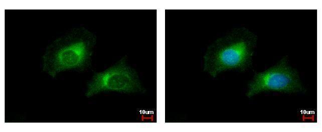 CARD6 Antibody (PA5-28517)
