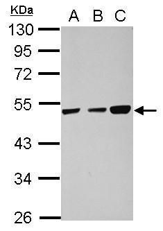 TXNDC5 Antibody (PA5-28520) in Western Blot